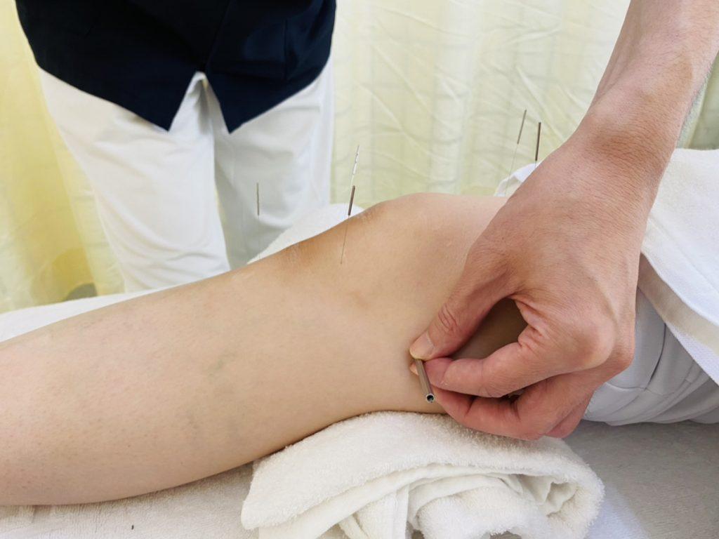 膝関節の鍼治療