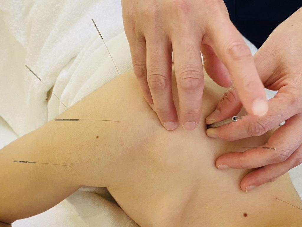 肩関節の鍼治療