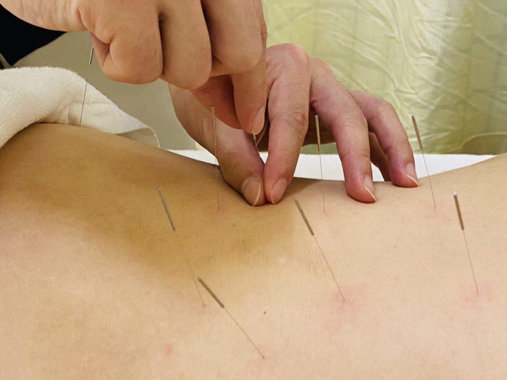 腰部の鍼治療